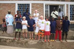 Fondation Stamm bietet Albino-Kindern in Burundi einen Weg in eine sichere Zukunft
